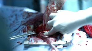 Bleeding in surgery